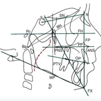 Cephalométrie